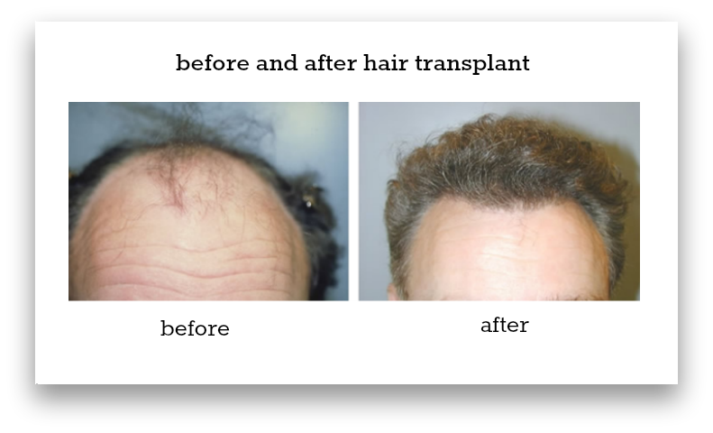 before-and-after-hair-transplant-sydney-hair-transplant-clinic-patient-1