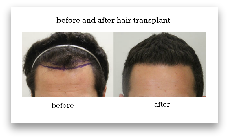 before-and-after-hair-transplant-sydney-hair-transplant-clinic-patient-3