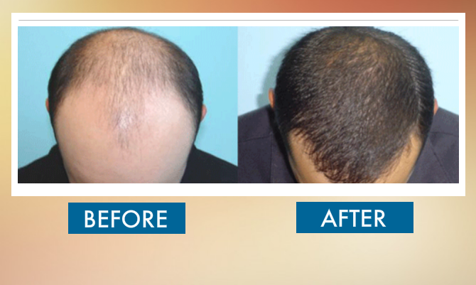before-and-after-hair-transplat-sydney-hair-clinic-image36