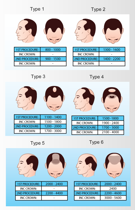 hair-transplant-cost-sydney-per-graft-and-hair-loss-type
