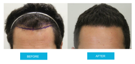 before-and-after-hair-transplant-sydney-canberra-sht-image2