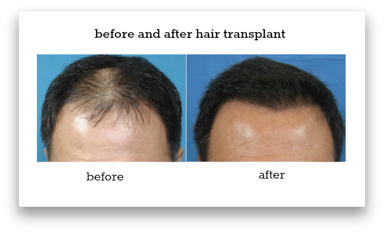 before-and-after-hair-transplant-sydney-hair-transplant-clinic-patient-4