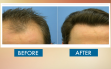 before-and-after-hair-transplat-sydney-hair-clinic-image35