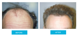 before-and-after-hair-transplant-sydney-canberra-sht-image1