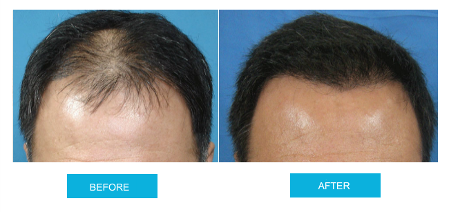 before-and-after-hair-transplant-sydney-canberra-sht-image3