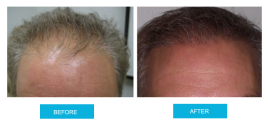 before-and-after-hair-transplant-sydney-canberra-sht-image5