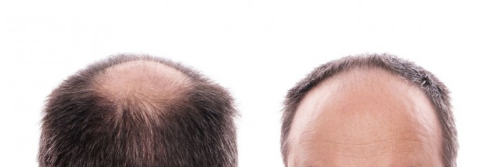 heriditary-hair-loss-male-pattern-baldness