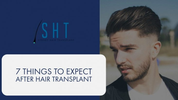 hair-transplant-sydney