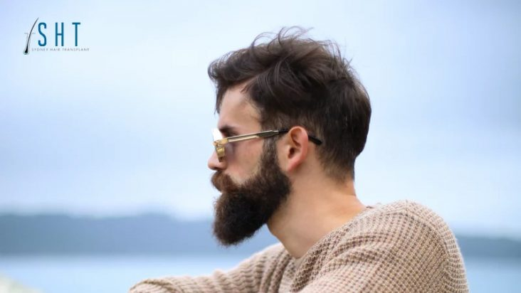 SHT February Blog - Everything You've Wanted to Know About Beard Hair Transplants